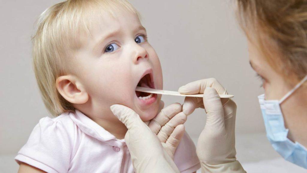 Ларингит лечение у взрослых.